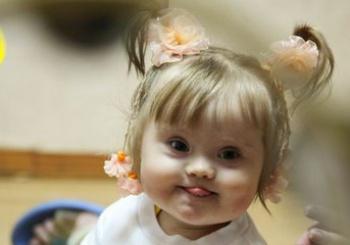 Фото с детьми с синдромом дауна