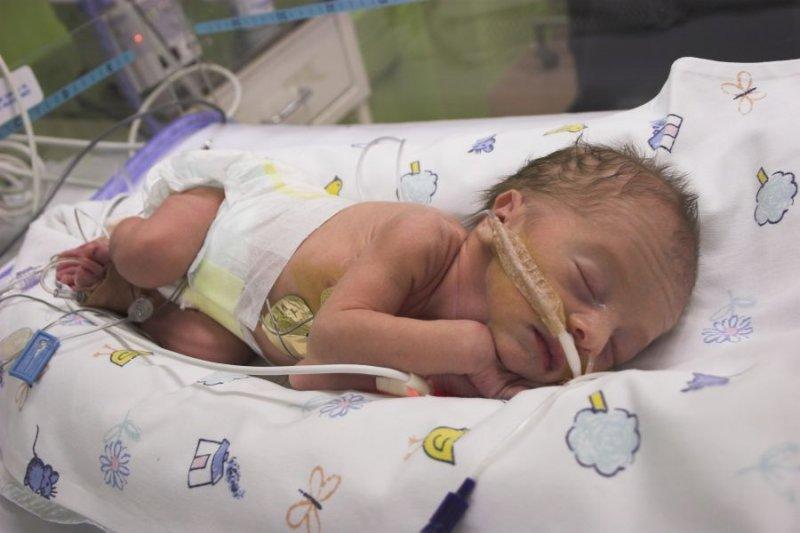 Недоношенный ребенок признаки видео