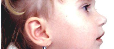 недоразвитие нижней челюсти у ребенка лечение