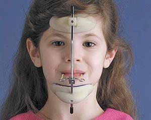 недоразвитие нижней челюсти