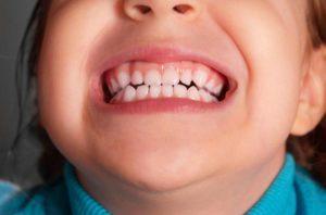 ребенок кусается в детском саду советы психолога